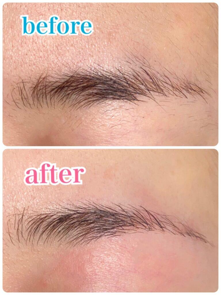眉毛の整える前後比較写真